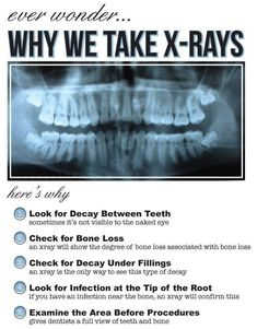 Have you ever wondered why Dentists always want to take an x-ray? Here are the very important reasons why.
