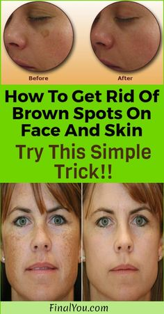 Many people have brown spots or age spots on their face and skin, and even though they are not very scary, people who have them do not feel self-confident. They can be on the limbs, shoulders, hands and face and their number increases over the years. But do not worry; there is a simple and …