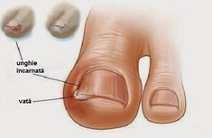 Ingrown toe nail is a common phenomenon seen in people who trim their toe nail too short at the edges. The ingrown toe nail can cause a lot of Ingrown Toenail Treatment, Ingrown Toe Nail, Toenail Fungus Remedies, Foot Remedies, Natural Remedies, Home Treatment, Feet Care, Toe Nails, Nail Polish