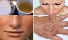 This homemade lotion is made out of lemon(or apple cider vinegar) and parsley leaves. It whitens the skin and lightens freckles or dark spots of the face. After you apply this to the face,. Whitening Cream For Face, Skin Whitening, Dark Spots On Face, Acne Remedies, Tips Belleza, Vitamin E, Beauty Secrets, Aloe Vera, Healthy Skin