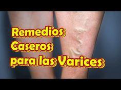 Remedios Caseros para las Varices en las Piernas, Como Eliminar Venas Varicosas - YouTube