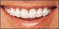 Sweet Smile is the best root canal clinic in Pune. We have the best professional root canal dentist in Pune. Root canal treatment is needed when the blood supply of the tooth is infected through decay or injury. For More Details Visit: Root Canal Treatment in Pimpri Chinchwad, Root canal in Aundh - Dr. Sandeep Bhirud's