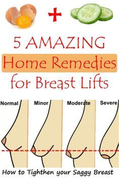 5 Amazing Home Remedies for Breast Lifts – Get Fit