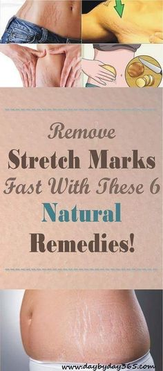 UNBELIEVABLE RESULTS!!! Remove Stretch Marks Fast With These 6 Natural Remedies!