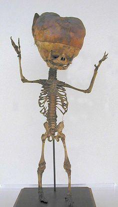 Skeleton of a fetus with hydrocephalus