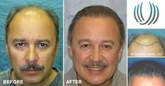 Patient MJL was a Norwood Class 6 with medium weight, wavy, salt & pepper hair before his #hairtransplant. Photos taken after two hair transplant sessions of 2,520 and 1,967 grafts totaling 4,487 follicular units. See his results and read his letter to Dr. Bernstein on the #BernsteinMedical website!