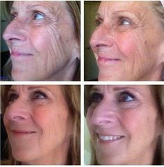 1 facial and repairage cream! Bring back your youth with an all natural remedie like It works!  Guffeygetfit.myitworks.com