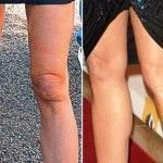 Come dimagrire le ginocchia | Donna Moderna