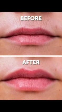 Beauty Tips For Glowing Skin, Beauty Tips For Face, Fitness Workouts, Facial Rejuvenation, Face Yoga Exercises, Full Body Gym Workout, Facial Yoga, Beauty Care Routine, Diy Beauty Treatments