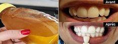 Découvrez ces astuces naturelles très simples à réaliser pour blanchir vos dents à la maison...