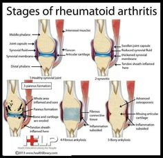 There are four identified stages of rheumatoid arthritis, characterized by differing pathogenesis and physical changes. #asthmasigns #arthritisinfographic