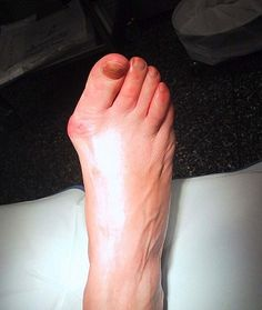 Křivý palec u nohy a kostní výrustek (hallux) - jak na vbočený palec?