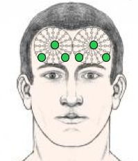 chiamiamola cromopuntura onirica un trattamento che mi è arrivato tramite un sogno notturno, in un periodo particolarmente rabbioso e rancor...