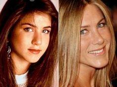 Mira el cambio de Jennifer Aniston tras su cirugía de nariz. Foto: Reprogucción/Getty Images