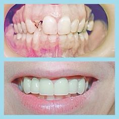 Another beautiful #beforeandafter #smilesofsanmarcos #happyhumpday call us today!