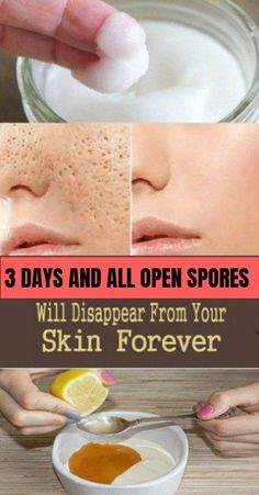 Open or large pores on the skin, especially the face and nose, is an aesthetic concern for many people. Also, open pores increase your susceptibility to acne, skin irritations, and blackheads especially if you have an oily skin. #Skincare #openpores #healthyskin #naturalremedy #pores #skinroutine #glowingskin #beauty #beautyforwomen