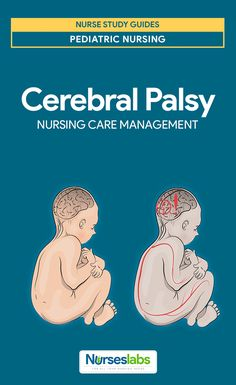 Cerebral Palsy Nursing Care Management and Care Planning