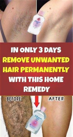 remove unwanted hair permanently/remove unwanted hair/remove unwanted hair with vaseline/remove unwanted hair naturally/remove unwanted hair permanently bikinis/Remove Unwanted Hair/ Underarm Hair Removal, Upper Lip Hair Removal, Back Hair Removal, Electrolysis Hair Removal, Hair Removal Diy, Hair Removal Methods, Hair Removal Cream, Permanent Facial Hair Removal, Remove Unwanted Facial Hair