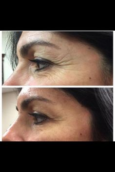 Try ItWorks! Product, Wow!