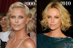 Celeb Surgery Charlize Theron #PlasticSurgery Before and After