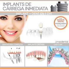 implantes dentales de carga inmediata
