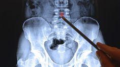 Meist zeigen sich typische Osteoporose-Symptome erst, wenn die Krankheit bereits fortgeschritten ist. Maßnahmen wie eine Knochendichtemessung können Sicherheit verschaffen. Woran Sie die Anzeichen erkennen, wie sie vorbeugen können und welche Ther...