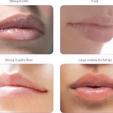 17 Best Lip Augmentation San Diego - Lip Rejuvenation La
