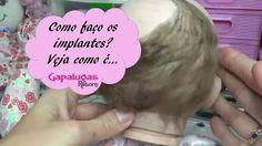 Implantando cabelos