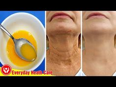 This Mixture Will Remove All Wrinkles Quickly, Use It This Way - YouTube Wrinkle Remedies, Skin Care Remedies, Face Skin Care, Diy Skin Care, Home Remedies For Wrinkles, Neck Wrinkles, Anti Aging Facial, Wrinkle Remover, Tips Belleza
