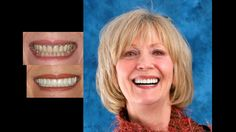Smile makeover with porcelain crowns. Cosmetic dentistry by Dr. Mike Maroon of Advanced Dental in Berlin, CT.