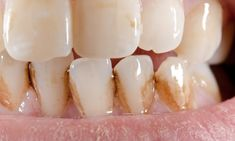 Gum disease is one of the major causes of a bad breath. If you have tried all the possible ways to find out the causes of your bad breath including oral hygiene and dry mouth, then you should visit your dentist to know a gum disease is the culprit or not. Teeth Health, Oral Health, Dental Health, Dental Care, Teeth Whitening Remedies, Natural Teeth Whitening, Home Remedies, Natural Remedies, Health Foods