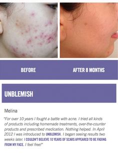 Before and After Results: Rodan + Fields Unblemish Regimen. Because adult acne is so unfair!!