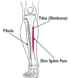 Do a lot of running? Make sure you know how to avoid, recognize and treat shin splints and stress fractures. Here's how: http://learn.captainu.com/2014/06/03/end-spring-running-season-watch-shin-splints-stress-fractures/