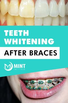 Teeth whitening after braces Teeth After Braces, Fix Teeth, Get Whiter Teeth, Brace Face, Best Teeth Whitening, White Teeth, Orthodontics, How To Get Rid, Smile