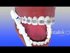 Técnica de higiene pacientes ortodoncia - Dentalink Software Dental, Video 3D - YouTube