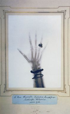 aperfectcommotion:      x-ray of  alexandra feodorovna's hand, otherwise known as the last tsaritsa    iwritewordsgood: anatomical:  marsiouxpial: