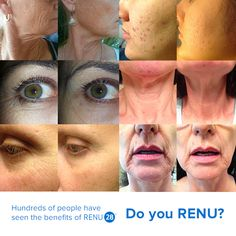 Imagine what RENU 28 will do for your skin!