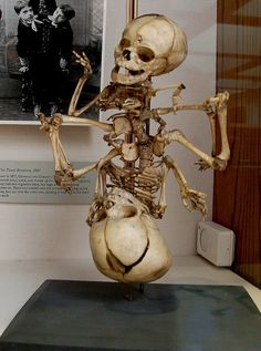 Fetal Conjoined Twins Skeleton by Curious Expeditions, via Flickr