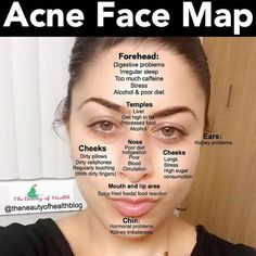 Do you know about acne face mapping? If you don't know about the acne face map, then this article helps to know what your acne is trying to tell you about your body according to the face mapping. Beauty Tips For Skin, Beauty Skin, Beauty Hacks, Natural Beauty, Beauty Tutorials, Beauty Ideas, Natural Skin, Natural Makeup, Beauty Makeup