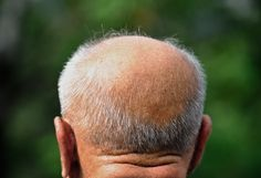 Men experience hair loss at nearly twice the rate as women, but why?