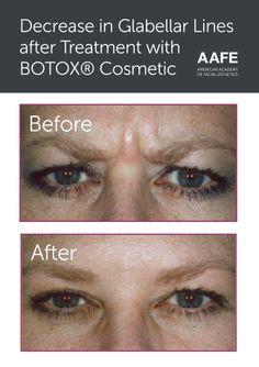 Decrease in glabellar lines after treatment with Botox cosmetic. Skin Care Regimen, Skin Care Tips, Facial Esthetics, Botox Brow Lift, Botox Cosmetic, Shrink Pores, Dermal Fillers, Happy Skin, Prevent Wrinkles