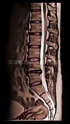 Herniated Disc, MRI Unidad Especializada en Ortopedia y Traumatologia en Bogota - Colombia PBX: 6923370 www.unidadortopedia.com