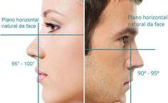 cirurgia plastica nariz