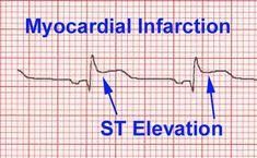 ST elevation myocardial infarction - image taken from wikipedia