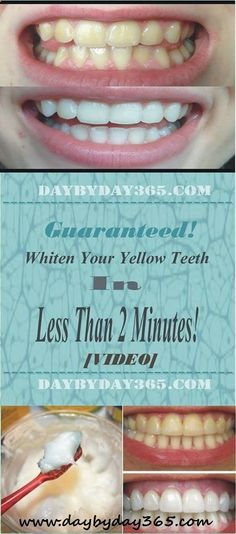 [VIDEO] Guaranteed! Whiten Your Yellow Teeth in Less Than 2 Minutes! - Check This Awesome Article !!!