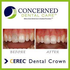 #beforeandafter #cerec #dentalcrown #smile #teeth #dentistry #dentist