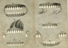 ... shows different sets of mineral paste teeth and how to fix them