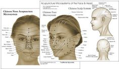 great site to view all acupuncture points