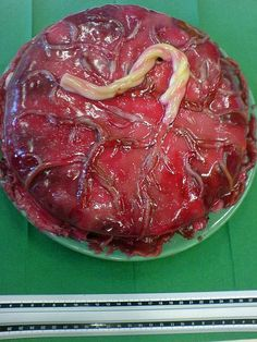 Cake decorated to look like a placenta = Seriously.when I graduate from midwifery school I WANT THIS CAKE! Midwifery Schools, Student Midwife, Eat Your Heart Out, Edible Glitter, Cake Board, Cute Cakes, How To Make Cake, Eat Cake, Food Art
