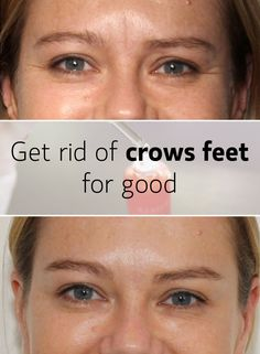 """When you laugh a lot, you might end up with crows feet because well… that's what skin does. It creases and there's pretty much nothing you can do about it. After all, you won't keep a """"resting bitch face"""" for your entire life, right?"""